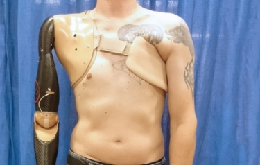 The new robot prosthetic is controlled by sensor, which sits firmly on the patients pectoral muscle (Credit: Imperial College London)