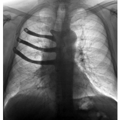 X-ray of Mr Maggs' chest with the implant in place (Credit: ABMU Health Board)