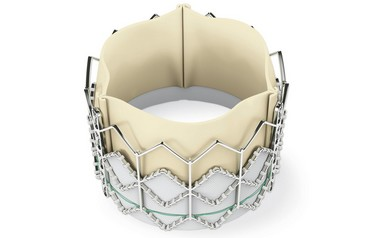 Replacement valve used is called the Edwards SAPIEN Transcatheter Heart Valve. Photo courtesy of  UCLA Health Sciences