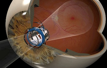 Implantable telescope technology reduces the impact of the central vision blind spot due to End-Stage AMD