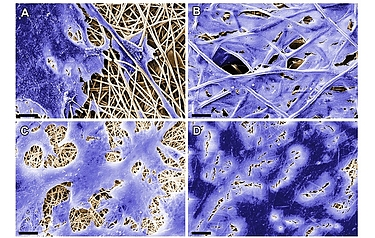These images, taken with a scanning electron microscope, show cells adhering to the electrospun substrate (reproduced courtesy of Fraunhofer IGB)